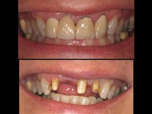 The Single Tooth Implant