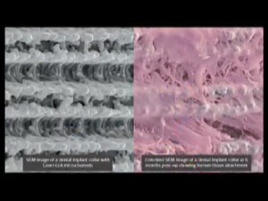 Connective Tissue Attachment to Dental Implants - Pt 1