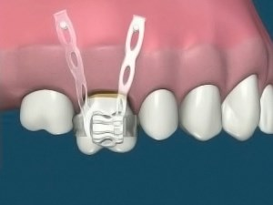 Max Molar Intrusion With Implants