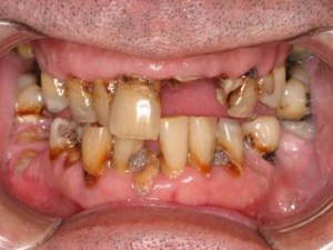 Ideal Provisionals for Teeth and Implants  Pt 2