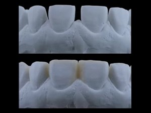 Veneer Restorations - Keys to Success Part 1