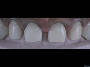Veneer Restorations - Keys to Success Part 2