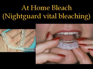 Bleaching Teeth, Current Status - Part 3