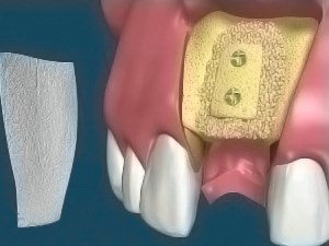Single Tooth Atrophy Block Graft