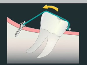 Molar Uprighting and Micro-Implants in Orthodontics