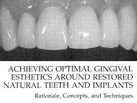 Achieving Optimal Gingival Esthetics
