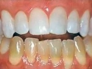 The Status of Tooth Whitening Techniques 1999