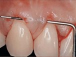 Current Trends in Gingival Recession Coverage
