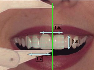 Lip-Generated Esthetic Treatment Planning