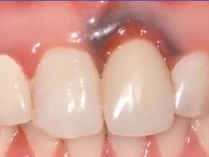 Timing, Positioning, & Sequential Staging in Esthetic Implant Therapy