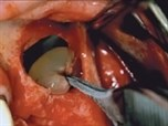 Maxillary Sinus Membrane Repair: Update on Technique for Large and Complete Perforations