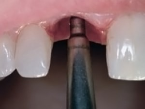 Optimizing Anterior Esthetics with Immediate Implant Placement and a Fixed Provisional Restoration