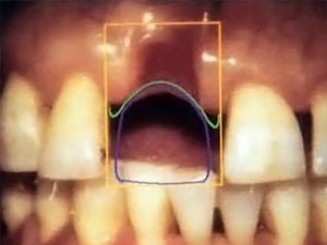 Prosthodontics, Periodontics & Orthodontics: A Multidisciplinary Approach to Implant Dentistry