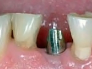 Optimum Esthetics and Rentention with Cast-to Abutments