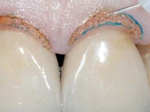 Laser Assisted Gingival Tissue Procedures