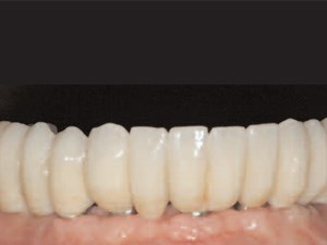 Systematic Review of Survival Rates for Immediately Loaded Dental Implants