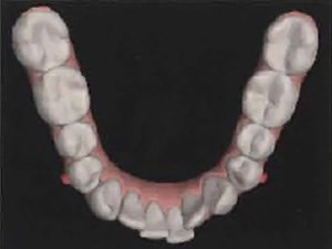 Adjunctive Orchestrated Orthodontic Therapy