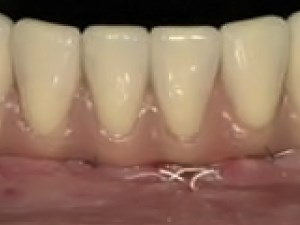 Immediate Occlusal Loading of Osseotite Implants in the Lower Edentulous Jaw