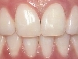 Esthetics and Anterior Tooth Position: An Orthodontic Perspective Part 1 - Crown Length