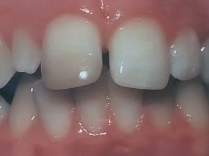 Esthetics and Anterior Tooth Position: An Orthodontic Perspective Part 3 - Mediolateral Relationships