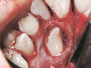 Periodontal Response to Early Uncovering, Autonomous Eruption, and Orthodontic Aligment of Palatally Impacted Maxillary Canines