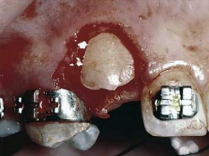 Surgical and Orthodontic Management of Impacted Maxillary Canines