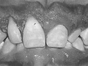 Diagnosis and Treatment Planning for Predictable Gingival Correction of Passive Eruption