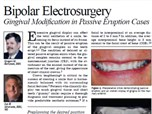 Bipolar Electrosurgery: Gingival Modification in Passive Eruption