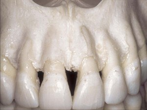 A Study of the Fate of the Buccal Wall of Extraction Sockets of Teeth with Prominent Roots