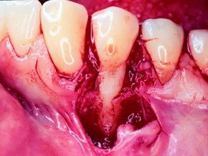 Use of Bone Grafts for the Enhancement of a GTR-Based Root Coverage Procedure: A Pilot Case Study