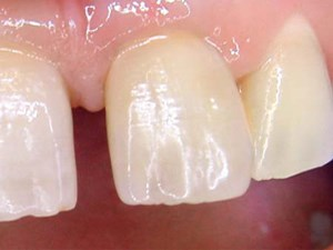 Use of the Natural Tooth for Soft Tissue Development: A Case Series