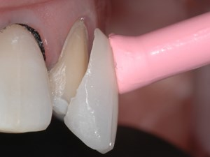 Micro-thin Veneers in Esthetic Therapy