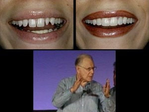 Smile Design in Everyday and Implant Dentistry – Part 1