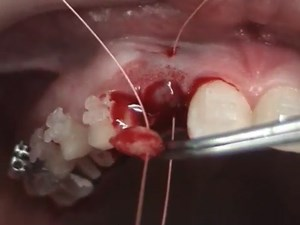 Autogenous Soft Tissue Ridge Augmentation