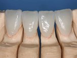 Bonding of Ceramic Veneers 2009 – Part 1