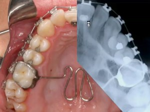 Treatment of Anterior Open Bites in Orthodontics Utilizing Micro-Implants