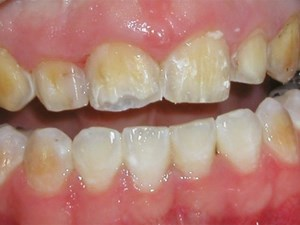 Pediatric Esthetic Dentistry for Teens: Part 1