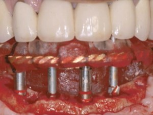 Immediate Loading in Everyday Dentistry - Part 1