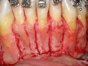 Periodontally Accelerated Osteogenic Orthodontics - Part 2