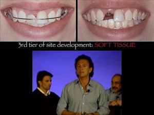 Smile Design in Everyday and Implant Dentistry – Part 4