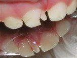 Traumatic Injuries to Primary Teeth