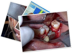 Increase Surgical Implant and Regenerative Success by Going 3D and Using Innovative Products