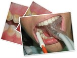 Pediatric Esthetic Dentistry for Teens: Do Not Miss Treating The Future Gens' Smiles