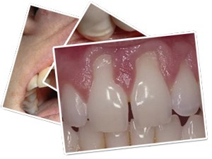 Esthetic Periodontal Surgery: Making Recession Defects Disappear by Grafting