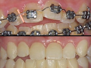 Periodontally-Accelerated Osteogenic Orthodontics – Part 3