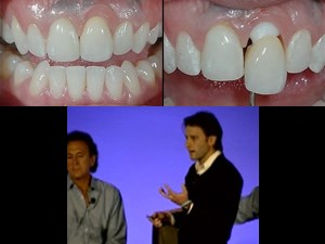 Smile Design in Everyday and Implant Dentistry – Part 5