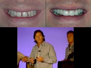 Smile Design in Everyday and Implant Dentistry – Part 6