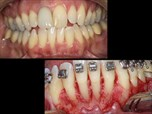 Periodontally-Accelerated Osteogenic Orthodontics – Part 4