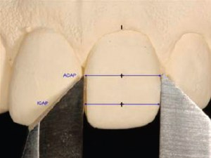 Gingival Zenith Positions and Levels of the Maxillary Anterior Dentition