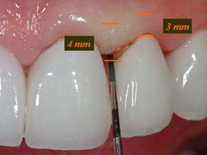 The Master Impression in Indirect Restorative Dentistry – Part 1